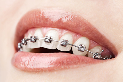 Описание: http://dentalstyle.ru/images/pic/dental-braces.jpg